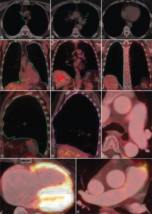 Exemplary overview of regions of interest (ROIs) delineated in [18F]FDG-PET/CT fusion images. ROIs of lung parenchyma in 3 different planes: transverse (A–C), coronal (D and F), and sagittal (G and H), of left (I) and right (K) central pulmonary artery, and also of left and right ventricular myocardium (J). Volume of interest (VOI) of liver parenchyma (E) as reference region for semiquantitative analysis. [18F]FDG-PET = [18F]fluorodeoxyglucose positron emission tomography, CT = computed tomography.