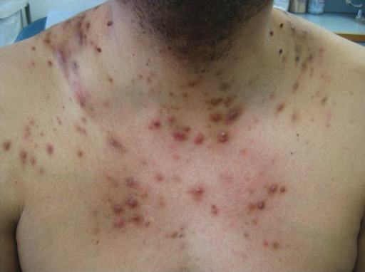 Steroid acne on the chest following use of a corticosteroid containing bleaching cream for over 1 year