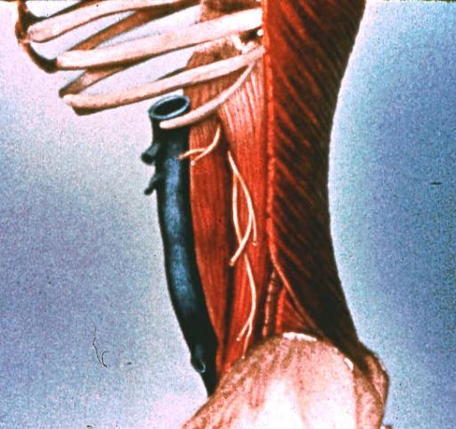 Dorso Lateral Body Wall External Abdominal Oblique Mus Open I