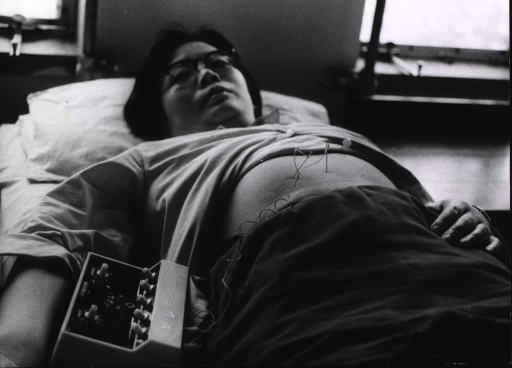 <p>A female patient is lying on a bed, she has two needles inserted in her abdomen; the needles are attached to a device which electrically stimulates them.</p>