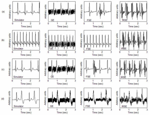 simulated ecg recorded before and after contamination