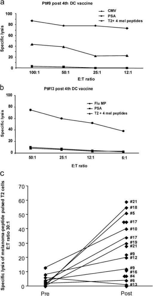 CTL activity against melanoma peptide–pulsed T2 cells before and after vaccination. Purified CD8+ T cells after a single stimulation with peptide-pulsed DCs are used as effectors in a standard 4-h 51Cr assay with T2 cells pulsed with either a control PSA peptide, or with viral peptides (Flu-MP, CMV), or with a mix of the four melanoma peptides (GP100, MART-1/Melan A, tyrosinase, and MAGE-3) at indicated E/T ratios. (a) CD8+ T cells from patient number 9 (see Table I, after fourth DC vaccine) are capable of specific lysis (ordinate) of T2 cells pulsed with viral (CMV) or melanoma peptides at several E/T ratios (abscissa). (b) CD8+ T cells from patient number 13 (see Table I, after fourth DC vaccine) are capable of specific lysis (ordinate) of T2 cells pulsed with Flu-MP peptide at several E/T ratios (abscissa), but not of melanoma peptide–pulsed T2 cells. (c) Killing of melanoma peptide–pulsed T2 cells (a mix of four melanoma peptides) by cultured CD8+ T cells from all tested patients at baseline (Pre) and after fourth DC vaccination (Post). Ordinate/specific lysis at the E/T ratio of 30–25:1, after subtraction of values obtained with PSA peptide–loaded T2 (see Table S1), patient number (see Table I). All experiments are shown.