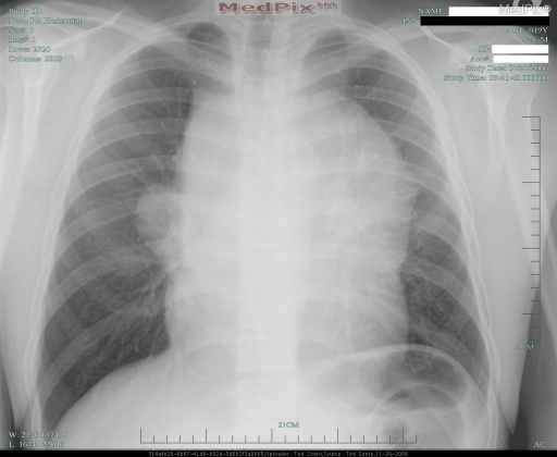 CXR-PA view- shows large anterior mediastinal mass that is confirmed with upper mediastinum measuring 18.5 cm with obvious bulging of the mediastinal margins. The mass obscures the upper heart borders.