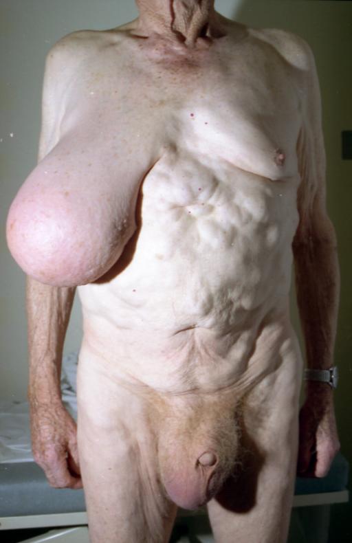 Largest nipple pics