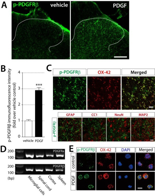 PDGF-BB phosphorylates its receptors in spinalmicroglia. (A) The immunoreactivity of phosphorylated PDGFRβ protein was detected by a specific antibody for p-PDGFRβ 30 min after intrathecal administration of vehicle or PDGF-BB (10 pmol) in the L5 spinal dorsal horn. Scale bar, 200 μm. (B) The intensity of p-PDGFRβ immunofluorescence was quantified in the dorsal horn region of vehicle treated rats and PDGF-BB treated rats. Data represent the means ± SEM of the immunofluorescence intensity (n = 5). ***P < 0.001 vs vehicle by Student's t-test. (C) Double immunofluorescence labeling of the dorsal horn 30 min after intrathecal PDGF-BB administration with p-PDGFRβ (green) and cell markers (red); OX-42, a microglia marker; GFAP, an astrocytes marker; CC1, an oligodendrocytes marker; NeuN and MAP2, neurons markers. Scale bars, 20 μm. (D) PDGFRα (116 bp) and PDGFRβ (145 bp) mRNA expression in primary microglia by RT-PCR analysis. Spinal cord, cerebral cortex, and spleen are positive controls. (E) Triple immunofluorescence labeling of p-PDGFRβ (green) with OX-42 (red) and DAPI (blue), a nuclear marker, in primary microglia treated with PBS as a control or PDGF-BB (50 ng/ml) for 10 min. Scale bar, 20 μm.