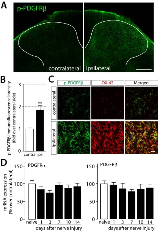 Immunofluorescence of phosphorylated PDGF β-receptors and expression of PDGF receptor mRNAs in rats after nerve injury. (A) The immunoreactivity for p-PDGFRβ was detected in the L5 spinal dorsal horn 4 days after nerve injury. Scale bar, 200 μm. (B) The intensity of p-PDGFRβ immunofluorescence was quantified in the dorsal horn region of contralateral side (contra) and ipsilateral side (ipsi) of nerve injured rats. Data represent the means ± SEM of the immunofluorescence intensity (n = 3). **P < 0.01 vs contra by Student's t-test. (C) Double immunofluorescence labeling of p-PDGFRβ (green) with OX-42 (red), a microglia marker. Scale bars, 20 μm. (D) Total RNA extracted from the L5 spinal cords of naive rats and peripheral nerve injured rats was subjected to quantitative analysis of PDGFR mRNA expression by real-time RT-PCR. Data are means ± SEM of the percentage over the naive value (ipsilateral side/contralateral side, n = 5).