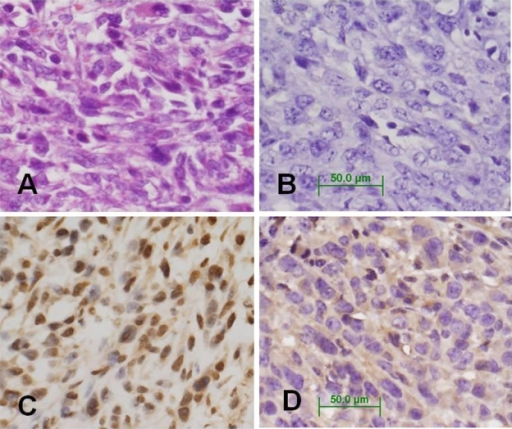 Immunohistochemical analysis of PR and mPRα protein expression in 4T1 tumor tissues. A) 4T1 tumor stained with H & E. B) Negative control of 4T1 tumor tissue stained without primary antibody. Magnification of all images is 400×. C) 4T1 tumor tissue stained with anti-PR. D) 4T1 tumor tissue stained with anti-mPRα.Abbreviations: H & E, hematoxylin & eosin; PR, progesterone receptor; 4TI, mouse mammary cell line.