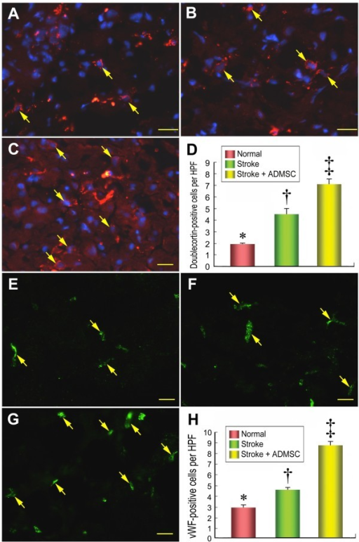 The distribution of neuroblasts and endothelial cells in brain infarction area. Results of IHF staining (D) (400×) showing significantly lower number of doublecortin-positive cells (yellow arrows) in group 1 (A) than in groups 2 (B) and 3 (C), and significantly lower in group 2 than in group 3. IHF staining (H) (400×) demonstrating significantly lower number of von Willibrand factor (vWF)-positive cells (yellow arrows) in group 1 (E) than in groups 2 (F) and 3 (G), and notably lower in group 2 than in group 3 (H). n = 10 in each study group. Scale bars in right lower corner represent 20 μm. * vs. † vs. ‡, p < 0.001.