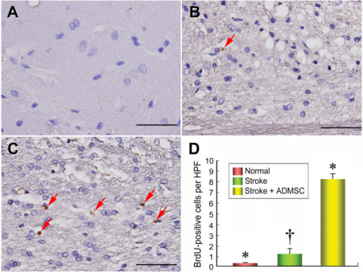 The distribution of proliferative cells in brain infarction area. Immunohistochemical (IHC) staining (D) (400×) showing markedly lower number of 5-bromodeoxyuridine (BrdU)-positive cells (red arrows) in groups 1 (A) and 2 (B) than in group 3 (C). No difference of BrdU-positive cells between groups 1 and 2. n = 10 in each group. Scale bars in right lower corner represent 50 μm. * vs. †, p = 0.096; * vs. ‡, p < 0.0001; † vs. ‡, p < 0.0001.
