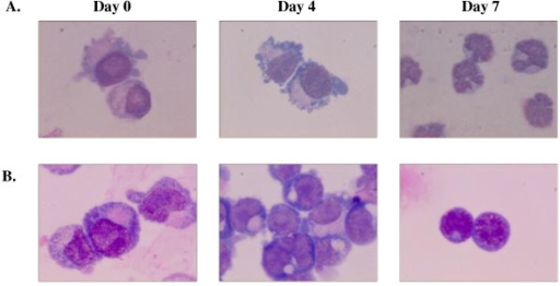 Cultures of HSC/CD34+ from HbE/β-thalassemic patients (A) and normal donors (B). After 7 days, the HbE/β thlassemic cell developed to erythroblasts and showed characteristic cell morphology of cells undergoing apoptosis including cell membrane blebbing and nuclear fragmentation.