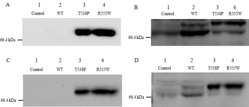 Western blot analysis of the recombinant wild-type and mutant proteins. HCE and HeLa cells (A, B: HCE cell; C, D: HeLa cells) were transfected with wild-type (lane 2) and two mutant TGFBI plasmids (lanes 3 and 4) or were not transfected plasmid (lane 1). The culture medium was replaced with serum-free medium 48 h post-transfection. Another 48 h later, the serum-free media from overexpressed cells were collected and concentrated. A and C: 65 µg protein was loaded into each well. The TGFBI-T538P-myc and TGFBI-R555W-myc protein were detected with an anti-c-myc-tag antibody (lanes 3 and 4), while the wild-type TGFBI-myc protein was not (lane 2). B and D: 65 µg protein was loaded on to each well and detected with an anti-TGFBIp antibody. The wild-type and mutant TGFBI-myc fusion proteins were detected as two bands of different intensities (lanes 2–4). Endogenous TGFBIp is shown in the control lane (lane 1). The stronger bands in lanes 3 and 4 represent full-length mutant TGFBI-myc proteins, while the stronger band in lane 2 represents the wild-type TGFBI-myc protein that lacks its C-terminus. There was an approximate 10 kDa difference between the full-length and cleaved proteins.