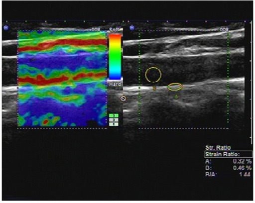 Longitudinal carotid artery image obtained in T2DM1 group on real-time US elastography. The left image shows the elastographic image in different colors representing different levels of strain. The right image shows the positions of ROI (A) and ROI (B), and the strain ratio (blood to carotid arterial wall strain ratio) as 1.44, calculated as the blood strain (B, 0.46%) divided by the arterial wall strain (A, 0.32%).