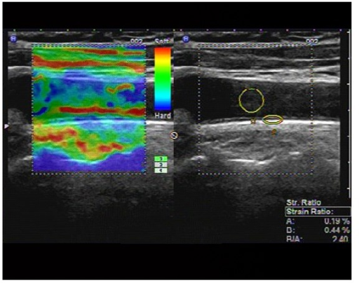 Longitudinal carotid artery image obtained in T2DM2 group on real-time US elastography. The left image shows the elastographic image in different colors representing different levels of strain. The right image shows the positions of ROI (A) and ROI (B), and the strain ratio (blood to carotid arterial wall strain ratio) as 2.40, calculated as the blood strain (B, 0.44%) divided by the arterial wall strain (A, 0.19%).