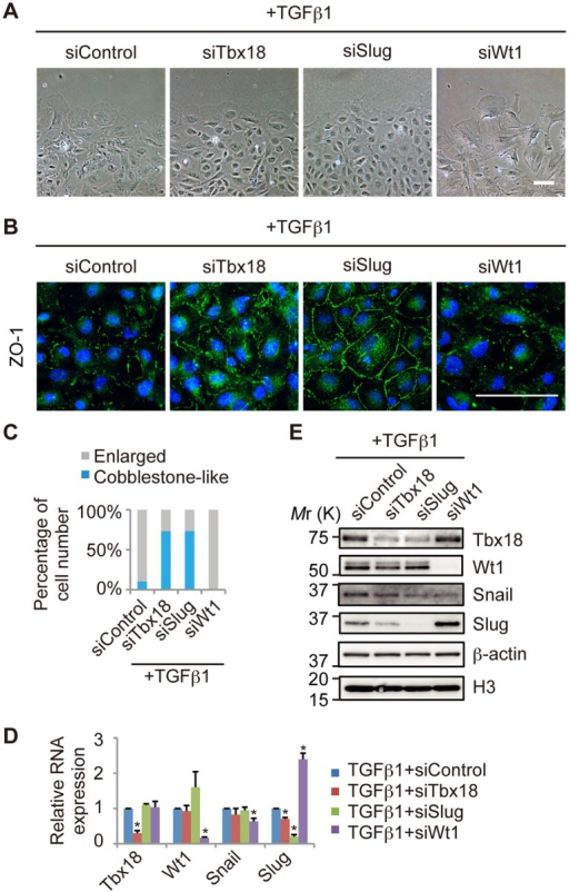 "The epicardial EMT induced by TGFβ1 is inhibited by knockdown of Tbx18 or Slug.(A) Representative images of epicardial cells treated with TGFβ1 and transfected with control siRNA (siControl) or siRNA directed against Tbx18 (siTbx18), Slug (siSlug) or Wt1 (siWt1). (B) Immunostaining for ZO-1 (green) and DAPI nuclear staining (blue) of primary epicardial cells transfected with siRNAs. (C) Percentage of cells categorized as ""Enlarged"" or ""Cobblestone-like,"" based on cellular morphology. (D) The relative mRNA expression of Tbx18, Wt1, Snail and Slug by real-time PCR analysis in TGFβ1-treated epicardial cells transfected with siControl, siTbx18, siSlug or siWt1 (n = 3; *P<0.05 vs. siControl). The results were normalized to Gapdh expression, and the relative expression level is given as a ratio to the TGFβ1+siControl. (E) Western blot performed with antibodies against Tbx18, Wt1, Snail and Slug. β-actin and histone H3 were used as loading controls. The data are presented as the mean ± SD. Scale bars: 100 µm."