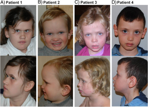 Facial appearance of Patient 1 at the age of 13 years (A), Patient 2 at the age of 4 years (B), Patient 3 at the age of 6.5 years (C), and Patient 4 at the age of 5.5 years (D). All patients have distinct, similar dysmorphic facial features, including prominent supraorbital ridges, deep set eyes, dark infraorbital circles and midface hypoplasia.