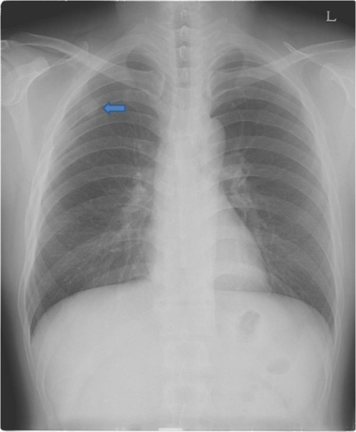 Preoperative chest radiograph (PA) view shows a round opacity on the right upper lung field (arrow).