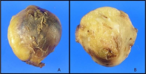 Gross findings of the specimen. A: The well-capsulated yellowish fatty mass measuring 3.8 X 2.5 X 2.0 cm and weighing 5.0 g was growing into the right fifth intercostal muscle. B: The cut surface of the lesion is well circumscribed, yellow soft, with focally gray-white areas.