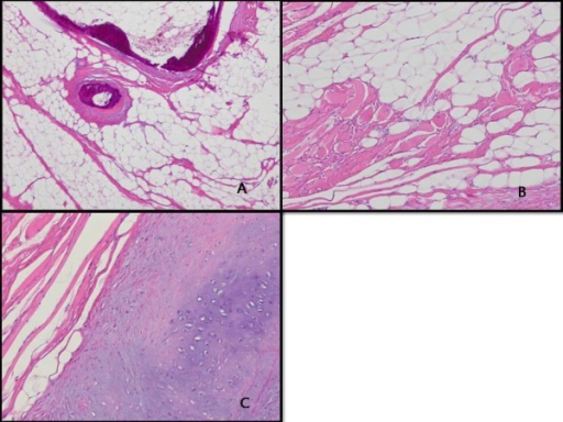 Pathologic findings. A: Mature adipocytes and focal ossification are seen (hematoxylin and eosin stain, x40). B: Entrapped skeletal muscle fibers are present (hematoxylin and eosin stain, x100). C: Chondroid metaplasia is noted (hematoxylin and eosin stain, x100).