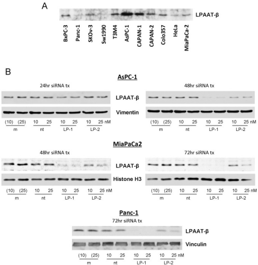 LPAAT-β expression and siRNA knockdown in human pancreatic cancer cells.(A) A panel of human pancreatic cancer cell lines shows differential expression of LPAAT-β protein. (B) Knockdown efficiency of siRNA transfection of AsPC-1, MiaPaCa2, and Panc-1 cells with LPAAT-β siRNA (LP-1 and LP-2) compared to mock transfection (m) and non-targeting (nt) siRNA controls.