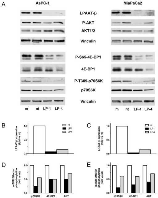Treatment with LPAAT-β siRNA results in inhibition of phosphorylation of mTOR effector proteins 4E-BP1, S6K, and AKT.AsPC-1 (A) and MiaPaCa2 (B) cells were treated for 72 hr with 25 nM LP-1, LP-4, non-targeting siRNA (nt), or a mock transfectant (m). Western blots were done with the indicated antibodies to mTOR effector proteins and mTOR-specific phosphorylation sites, as well as a Vinculin loading control. The graphs show densitometric quantitation of the phosphorylated bands normalized to both Vinculin and their corresponding whole protein. Results are representative of three independent experiments.