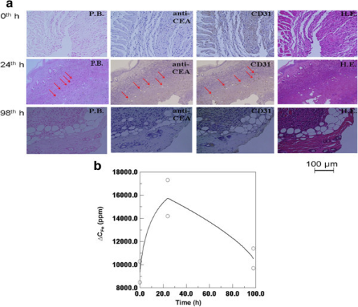 Biological results of the tumors of mouse 3, mouse 4, and mouse 5. (a) Tissue staining methods of HE staining, PB staining, anti-CEA staining, and CD 31 staining. (b) Iron amount by ICP. The circles are data points obtained from the measured results of two tissues.