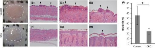 Mouse back skin treated with TPA. (A, E) Macroscopic images of TPA-treated skin. Images captured 5 min after the first application of TPA onto denuded back skin of adult control (A) and CKO (E) mice. Dotted lines indicate TPA solution. (B, C, D, F, G, H) Hematoxylin and eosin stained skin specimens of skin treated with 12-O-tetradecanoylphorbol 13-acetate (TPA) for 3 days. Lower (B, F) and higher (C, D, G, H) magnification photographs of the control (A–D) and afadin conditional knockout (CKO) (E–H) back skin. Arrowheads indicate cells that infiltrated the epidermis. (I) Average IEM regions in TPA-treated skin. The bars and lines represent the means and standard deviations of seven mouse skin samples (*P < 0.01). Scale bars: 100 μm in B, F, 50 μm in C, D, G, H.