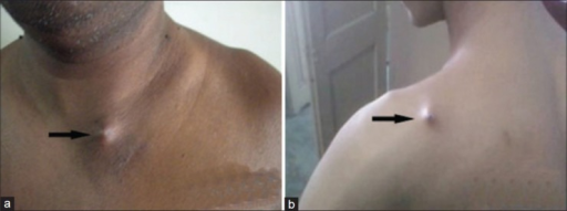 Clinical photograph showing complications of titanium elastic nailing in displaced midshaft clavicle fractures. (a) Medial hardware prominence, (b) lateral hardware prominence (black arrow)