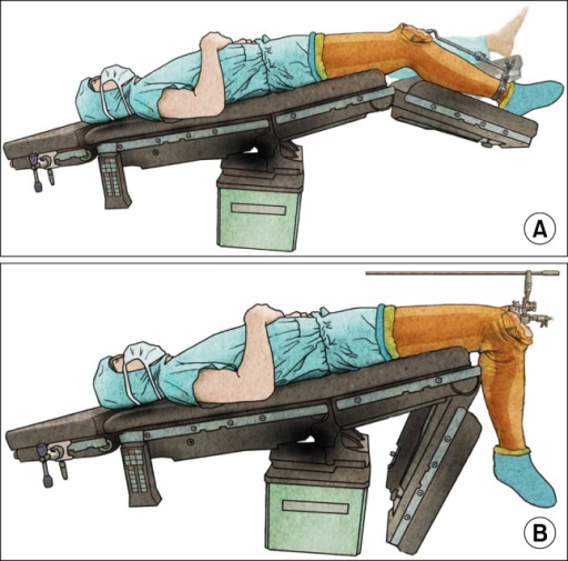 The position of the table during the tibial and femoral bone resection. (A) A tibial resection can be performed accurately using an extramedullary guide system in the Trendelenburg position even though the patients' knees were stiff preoperatively. (B) Gentle flexion of the knee can be performed after the tibial resection, and the femoral intramedullary guide system could be placed safely.
