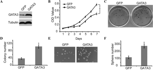 Effect of GATA3 overexpression on the proliferation and self-renewal of neuroblastoma cells. (A) Western blot analysis of GATA3 expression in SK-N-SH cells with GFP or GATA3 overexpression. α-Tubulin levels were used as a loading control. (B) SK-N-SH cells with GFP or GATA3 overexpression were analyzed for cell growth curve with an MTT assay. (C) SK-N-SH cells with GFP or GATA3 overexpression were plated at 4×103 cells per well in six-well culture plates. At days 14 to 21, soft agar colonies grew from cells with GFP or GATA3 overexpression. Cells with GATA3 overexpression were observed to give rise to larger and more colonies in soft agar. (D) Colonies >0.5 mm or that contained >50 cells were recorded. (E) and (F) SK-N-SH cells with GFP or GATA3 overexpression were plated at 4×103 cells per well in Matrigel ultra-low attachment plates. At days 14 to 21, spheres grew and were recorded (magnification, ×10). Data in (B), (D) and (F) are presented as the average obtained from three independent experiments. Error bars represent the standard deviation. *P≤0.05. GFP, green fluorescent protein; OD, optical density.
