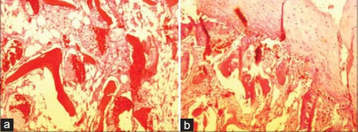 (a and b) Microscopic examination reveals proliferation in osteoid and chondroid tissue. Lamellar and mature trabeculae of bone are located in the center and are separated by fibro-fatty tissue and capillary vessels. These bony trabeculae are covered by a thick layer of hyaline cartilage. There is no evidence of malignancy and the features are those of benign osteochondroma