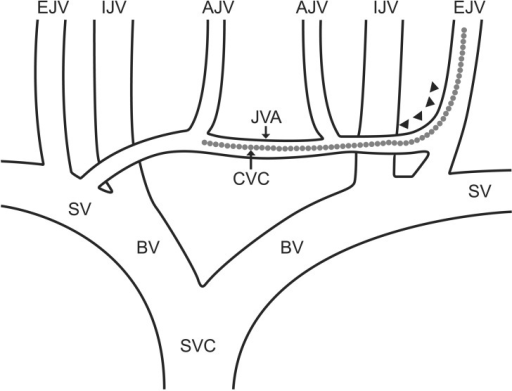 Schematic diagram of a jugular venous system in the neck. Superior concave end of anterior jugular vein in external jugular vein (arrowhead) and the probable position of central venous catheter (dotted line). AJV: anterior jugular vein, BV: brachiocephalic vein, CVC: central venous catheter, EJV: external jugular vein, IJV: internal jugular vein, JVA: jugular venous arch, SV: subclavian vein, SVC: superior vena cava.