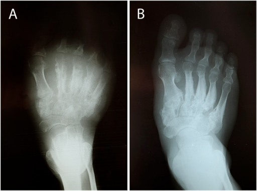 X-ray of right foot before (A) and 10 months after treatment (B).