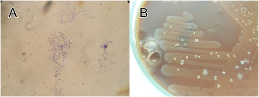 (A) Gram stain preparation showing branching Gram-positive rods, (B) Chocolate agar showing heavy growth of Staphylococcus aureus with scattered colonies of Nocardia aobensis (5 days' incubation).