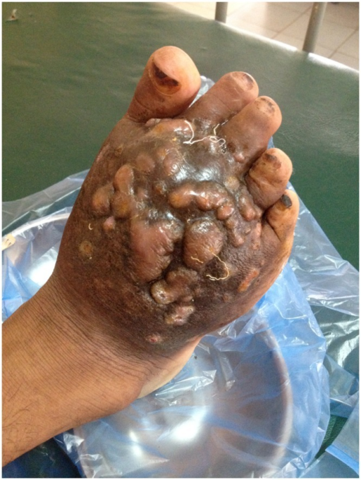 Right foot after 14 days of treatment with amikacin and trimethoprim-sulfamethoxazole.Sinuses were closed and no more discharge observed.
