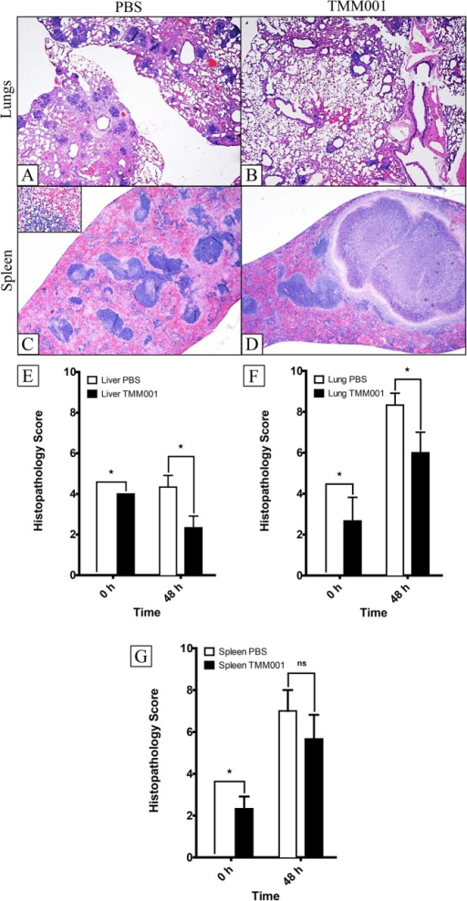 Histopathology of TMM001- vs PBS-treated mice 48 h post challenge.H&E-stained lung (A, B) and spleen (C, D) of CSM001 (1.5 x 105 CFU) challenged mice previously immunized with PBS (A, C) or TMM001 (1.5 x 104 CFU) (B, D). Scale bar = 100μM. Histological scores were assigned for the liver (E), lungs (F), and spleen (G) tissue sections after microscopic examination. Mean ± SEM, representative of three animals, is plotted. Statistical significance was determined by the Mann-Whitney test. ★ p ≤ 0.05.