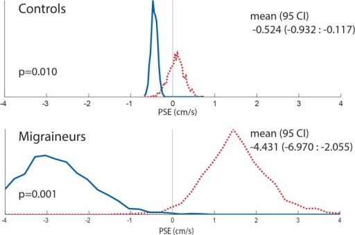 Histogram comparing combined controls and migrainers response using random resampling of responses for 8s visual stimuli.Responses from all subjects were included. Responses collected with looming VFM are represented with a dashed red line, receding VFM responses are represented with a solid blue line.