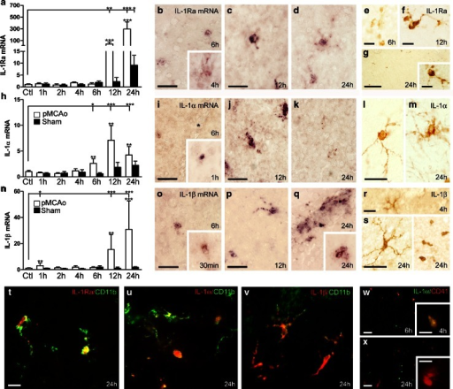 IL-1Ra and IL-1α/β synthesis is increased in CD11b+ cells in the peri-infarct after pMCAo. IL-1Ra (a–g), IL-1α (h–m), and IL-1β (n–s) mRNA and protein expression, and IHC double-fluorescence stainings (t–x) after pMCAo. a, h, n Quantitative PCR results showing temporal changes in IL-1Ra, IL-1α and IL-1β mRNA levels in pMCAo- and sham-operated mice, compared to non-lesioned controls (Ctl), n = 10–12/group. Statistical data are presented as mean ± SD (Kruskal–Wallis test with Dunns post hoc test). *P < 0.05; **P < 0.01; ***P < 0.001. b–d, i–k, o–qISH showing IL-1Ra mRNA+ (b, c, d), IL-1α mRNA+ (i, j, k) and IL-1β mRNA+ (o, p, q) cells in the peri-infarct. By 24 h, IL-1β mRNA was expressed by single cells and vessel-associated cells (q). e–g, l, m, r, s IHC showing IL-1Ra+ cells (e–g), IL-1α+ cells and (l, m), IL-1β+ (r, s) cells in the peri-infarct. t–v IHC double-fluorescence staining showing co-localization of IL-1Ra (t), IL-1α (u) and IL-1β (v) to CD11b+ microglia 24 h after pMCAo. w, x IHC double-fluorescence staining showing co-localization of IL-1α to CD41+ platelets in the peri-infarct, 4 and 6 h (w), but not 24 h after pMCAo (x). Scale bars: 20 µm (b–d, i–k, o–q), 10 µm (e, f, g, l, m, r–x , and insert in g) and 100 µm (g)