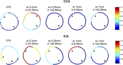 The mean OSI of each quarter by CFD and by PC-MRI measurements at 4 different spatial and temporal resolutions in the CCA and ICA.* shows the highest OSI quarter and + shows the lowest OSI quarter.