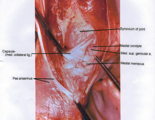 medial collateral ligament; pes anserinus; synovium of | Open-i