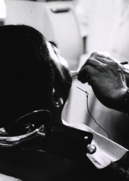 <p>A patient is sitting in a dental chair; attached to a needle inserted in his cheek is a wire which is connected to an electrical apparatus.</p>