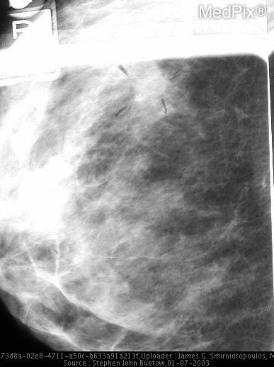The mass -- not the density-- may be seen retrospectively on CC view of the right breast. It is outlined by marker in the upper mid breast at approximately the 12:00 position.