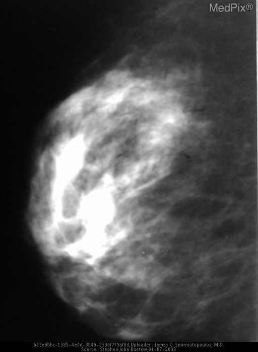 Post core biopsy ML views of the right breast demonstrate the mass (hematoma) to be in the upper mid breast at approximately the 1200 position.