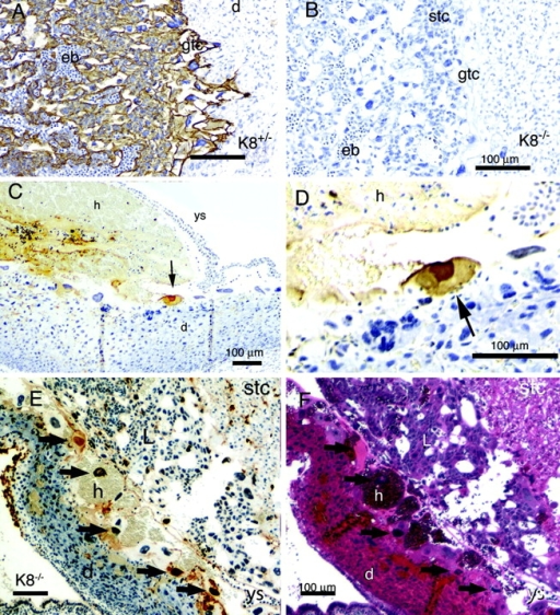 Apoptotic trophoblast giant cells in ConA-treated mice. Sections of the placenta (A and B) and uterine wall (C–F) were stained for K8 (A and B) and apoptotic nuclei by the TUNEL method (C–E). F shows a neighboring section of E stained with hematoxylin and eosin. Tissues with K8−/− concepti are shown in B–F. The tissues are labeled: d, decidua; eb, embryonic blood; gtc, giant trophoblast cell; h, hemorrhage; L, labyrinth region; stc, spongiotrophoblast cell; r, Reicharts membrane; ys, yolk sac. The black arrows in C–F indicate apoptotic giant cells. Bar, 100 μm. The tissue shown in E and F represent an adjacent uterine wall region which has folded up against the placental region as revealed by tracing the folded yolk sac basement membrane. This results in the atypical juxtaposition of the failed trophoblast giant cell layer against the labyrinth region of the placenta. Note the apoptotic giant cell nuclei associate with the accumulated hematomas.
