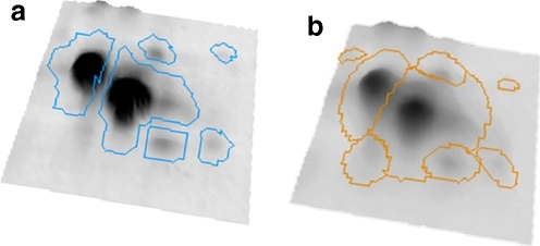 Spot boundaries produced by segmentation (a) and subsequent modeling (b)