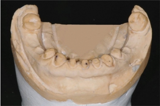 View of a model requiring impression of multiple prepared teeth.