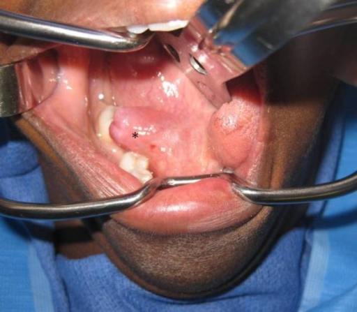 Clinical picture showing a right floor of mouth ranula for Floor of mouth