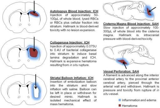 Schematic depicts models commonly used to mimic intracerebral hemorrhage (ICH) and subarachnoid hemorrhage (SAH). Autologous blood injection involves single- or double injection of autologous blood, or blood fractions, to generate a hematoma within the brain parenchyma. Collagenase injection is accomplished through the injection of recombinant bacterial collagenase to mimic blood extravasation following the rupture of cerebral arterial vasculature. Striatal balloon inflation is utilized to assess the mass hematoma effect on cellular injury and to evaluate the consequences of hematoma removal. Models of SAH produce blood accumulation in the subarachnoid space either by injection into the cistern magna or perforation of the anterior cerebral artery. Arrows represent injection route and demarcate the mass hematoma region.