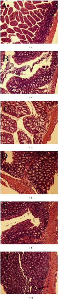 Histological findings of IL-10KO and WT mice by H&E staining (×200). Colonic sections of WT mice (a), IL-10 treatment mice at 14 (b) and 16 (c) wk of age and IL-10KO mice at 12 (d), 14 (e), and 16 (f) wk were stained with H&E staining.