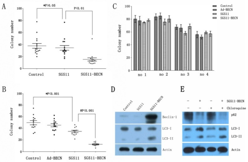 SG511-BECN induces autophagy in primary leukemic cells to preferentially inhibit CFU-L formation(A) Freshly isolated leukemia cells from CML patients (n=15) were cultured in methylcellulose medium in the presence of SG511, or SG511-BECN at an MOI of 50. After 12 days, colonies were scored. *, P>0.05 vs. Control; # P<0.01 vs. SG511. (B) Leukemic cells from 12 patients with AML were treated with the indicated vectors at an MOI of 50 before analysis of effects on colony formation. *, P<0.001 vs. Control; # P<0.001 vs. SG511. (C) Bone marrow cells obtained from 4 healthy volunteers were treated with the indicated viruses, and colonies were counted after 12 days. For all panels, values represent the mean of experiments in triplicate. (D) The primary leukemic cells from a CML patient in blast crisis (case 1) were infected with the indicated viruses at an MOI of 50, cell lysate was immunoblotted with anti-Beclin-1, anti-LC3, and anti-â-actin antibodies at day 2 of the experiment. (E) The primary blasts were treated with SG511-BECN (50 MOI), or SG511-BECN plus chloroquine (25 ìM) for 48 h. Autophagic flux was determined using Western blotting.