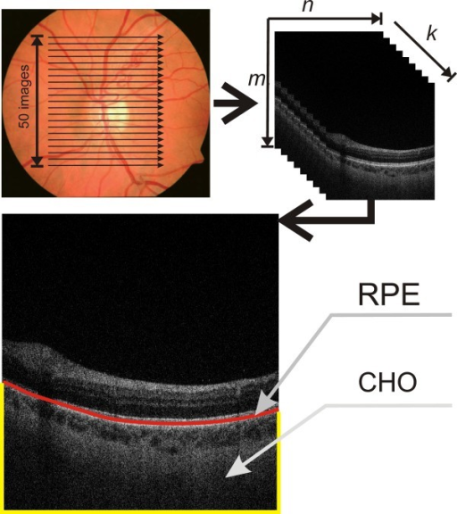The method for obtaining tomographic images of the fundus. For a sample 2D tomographic image, the RPE layer (retina pigment epithelium) and the choroid layer CHO are highlighted. Image analysis applies to the proposed algorithm which analyses the choroid layer using new methods of texture analysis and mathematical morphology. In each case, a flat two-dimensional input image is analysed, whose resolution (and that of the OCT apparatus) does not affect the obtained results.